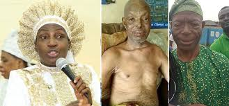 Yoruba Actor Alabi Yellow, receives N10m from Reverend Mother Esther fortreatment