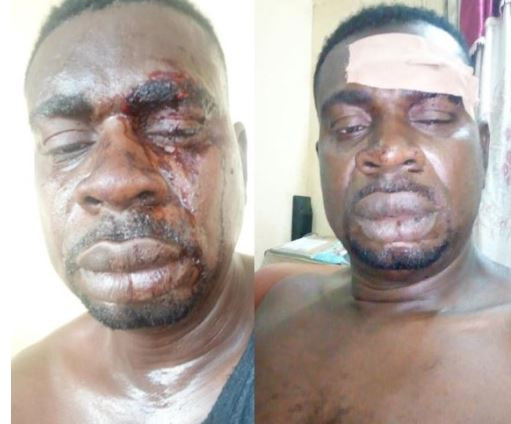 Nigerian musician Baba Fryo, beaten to pulp by unknown soldiers (photos)