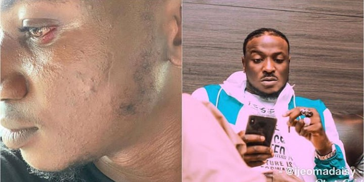 DMW artiste Peruzzi apologises for slapping Pamilerin on cool FM