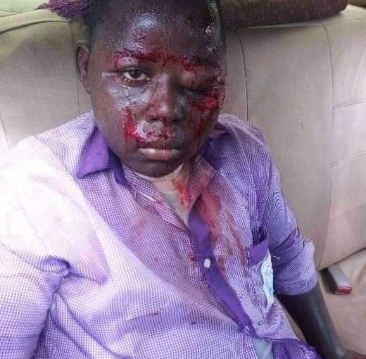 SS1 student beaten and blinded by his teacher in Yobestate