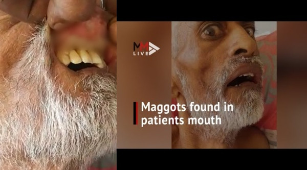 South African man dies after noticing maggot has been living inside his mouth (video)