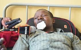Kenyan woman bites off her husband's lip duringfight