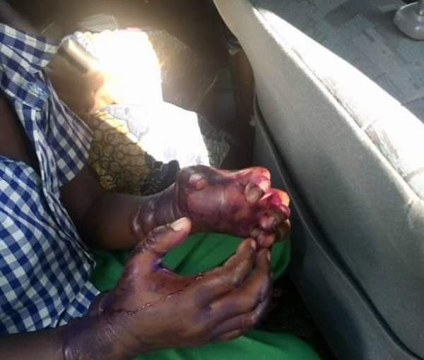 Woman burns her stepson's two hands (GraphicPhotos)