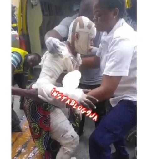 Aduke Gas Explosion Burns 2 Kids To Death, 23Burnt