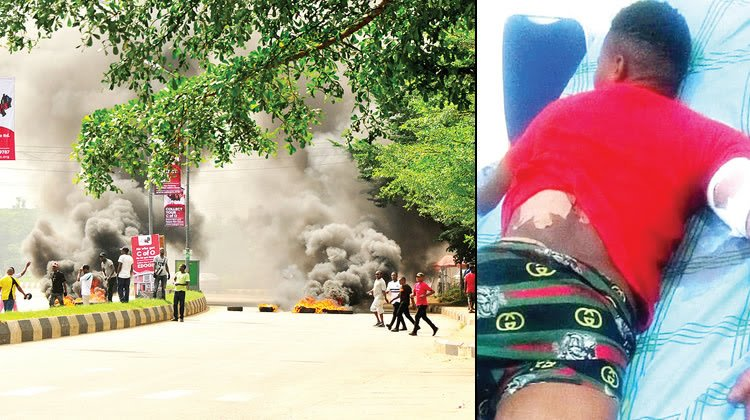Oshiomhole And Obaseki's Supporters Clash: 15 PeopleInjured